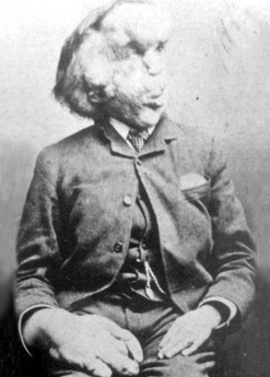 a black and white portrait of joseph merrick